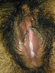 furry pussy